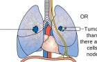 Help with Lung Cancer